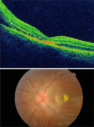 Above: Optical coherence tomography (OCT) displaying papilloedema with extravasation into the macula (a) and photoreceptor damage (b). Below: View of fundus showing papilloedema and macular star pattern.