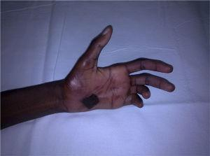 Left hand displaying ulnar claw and burn on palm.