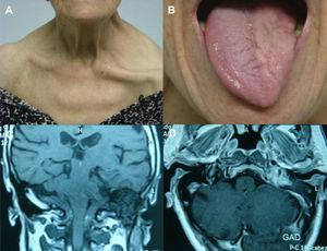 Collet-Sicard syndrome: (A) left cranial nerve xi palsy resulting in drooping of the shoulder and clavicle protrusion; (B) left cranial nerve xii palsy leading to atrophy of the left side of the tongue; (C) tumour located in the left internal jugular foramen; and (D) gadolinium-enhancing lesion in MRI.