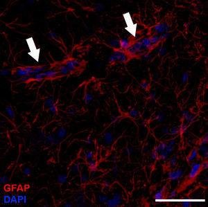Astrocytes are distinguished by their starlike shape; cerebral capillaries are nearly completely surrounded by astrocytic endfeet (arrows). Immunohistochemical stain for GFAP (red: astrocytes; blue: nuclei). Confocal microscopy image. Bar=70μm.