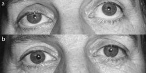 (a) Right palpebral ptosis. (b) Ptosis resolved after instillation of phenylephrine.