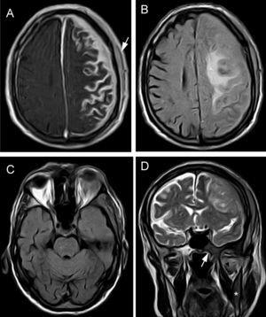 Brain MRI. (A) Axial T1-weighted sequence with magnetisation transfer contrast and gadolinum. Extensive leptomeningeal enhancement is seen in the left frontoparietal convexity, with dura mater thickening due to intradiploic involvement and epicranial soft tissue lesions (arrow). (B) FLAIR sequence: intraparenchymal vasogenic component of oedema in the left centrum semiovale. (C) Axial FLAIR sequence showing orbital mass affecting the left lacrimal gland and unilateral exophthalmos. D) Coronal T2-weighted TSE sequence: pathological hypointensity on the right side of the body of the sphenoid bone (arrow), base of the pterygoid process, and horizontal ramus of the mandible (asterisk). Signal changes were also seen in the lateral pterygoid muscle (arrowhead). The left side of the skull displays meningeal and epicranial infiltration.