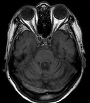 Case 3: Brain MRI scan, sagittal T1-weighted sequence displaying atrophy of the vermis and cerebellar hemispheres.