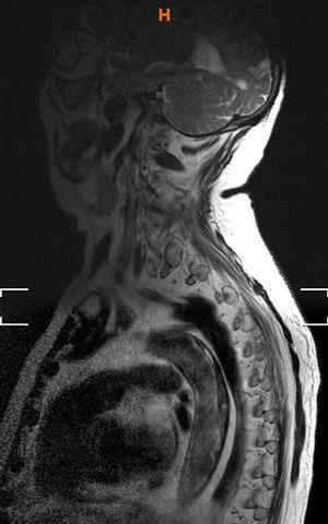 Spinal MRI: large thrombus on the posterior wall of the aorta.