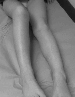 Antalgic position and atrophy of the right lower limb