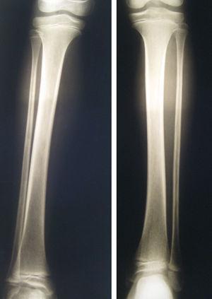 Decreased bone density in the right tibia