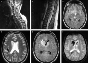 MR images. (A) and (B) Sagittal T2-weighted sequences displaying hyperintense lesions in the spinal cord and brainstem. (C) Axial FLAIR sequence showing hyperintense lesions in the mesencephalic tegmentum and the hypothalamic region. (D) Axial T2-weighted sequence showing increased signal in both caudate nuclei and subcortical white matter. (E) Axial FLAIR T2-weighted sequence exhibiting lesions in both caudate nuclei. (F) Axial T2-weighted gradient echo sequence showing a hypointense signal in the caudate nucleus, which suggests a haemorrhagic component.