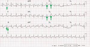 Electrocardiogram (ECG) showing sinus tachycardia at 120bpm, right axis deviation, S1Q3T3 pattern (pointed arrows), and complete right bundle branch block (rounded arrows). All of these findings were new.