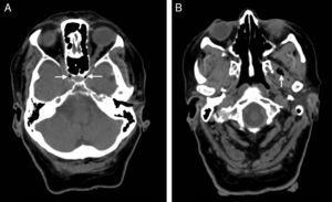 A simple axial CT scan performed 50minutes after symptom onset revealed air bubbles (arrow heads) inside both cavernous sinuses in the parasellar region (A) and at the level of the left lateral pterygoid muscle (B), adjacent to the trajectory of both internal carotid arteries, which exhibit signs of intracavernous atheromatous calcification.