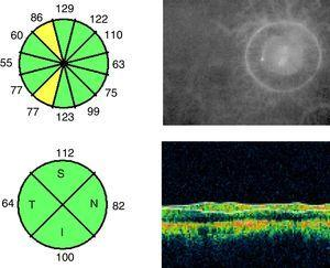 Quantitative analysis of RNFL thickness in a patient who experienced an episode of optic neuritis in the right eye more than 6 months previously. Thickness in all clock-hour sectors and quadrants is expressed in microns.