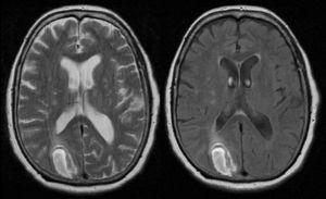 Brain MRI. The periphery of the lesion is hyperintense in T2-weighted and FLAIR sequences, a finding compatible with intraparenchymal haemorrhage in the right occipital cortical–subcortical area.