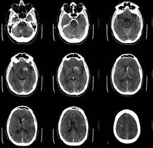 Simple cranial CT, axial sequences showing multiple haemorrhagic foci.