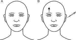 Ocular findings in our patient with her eyes in the primary position, before (A) and immediately after (B) intratympanic gentamicin injection. At baseline, eyes were in their neutral position. After CLG, the patient experienced upward deviation of the visual axis of the right eye, whereas the left eye remained unaltered; called hypertropia, this misalignment of the eyes is present in SD and eventually leads to BVD. Skew deviation is usually caused by supranuclear alterations in the brainstem or the cerebellum. It affects vertical vestibulo-ocular tracts or, at times, the vestibular nerve or vestibular terminal organ (organ of Corti). SD is usually comitant; when incomitant, it may mimic partial paralysis of the third or fourth cranial nerves. The cause is usually vascular ischaemia in the pons or the lateral medulla oblongata (Wallenberg syndrome), probably due to involvement of the vestibular nuclei or their projections. When damage is located in the inferior area of the pons (as in our patient), the ipsilateral eye is undermost (ipsiversive SD), whereas in the case of rostral lesions at the level of the pons, the undermost eye is the contralateral eye (contraversive SD).1–3