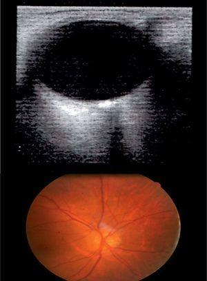 Above: A/B-mode ultrasound of the OD: hyperechoic artefact in the optic disc with posterior acoustic shadowing. Below: Calcified drusen in the optic disc of the OD.