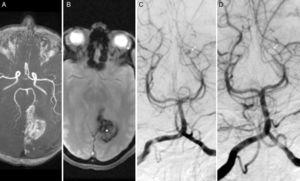 Brain MRI. (A) Intracranial arteries in 3D sequences. (B) Axial T2* sequence showing an intraparenchymal haematoma in the left parieto-occipital region (T2* in A and B). Digital subtraction angiography: (C and D) Anteroposterior view showing a saccular aneurysm measuring 3mm in the P4 segment of the left PCA (calcarine artery), before (white arrow in C) and after coiling (white arrow in D).