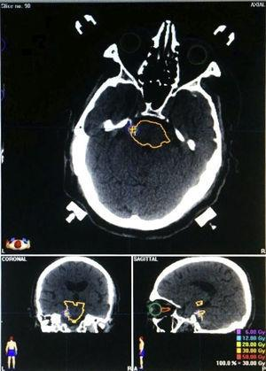Example of radiosurgery planning with Brainlab® software, using CT images and stereotactic localisation. The target was located 1 to 2mm from the trigeminal RExZ.