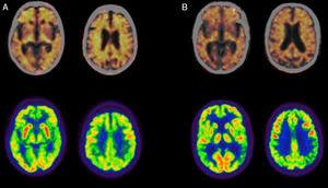 Positron emission tomography (PET) studies with florbetapir (upper row; images fused with CT) and 18F-fluorodeoxyglucose (FDG; lower row) in patients diagnosed with Alzheimer disease. (A) Woman aged 79 diagnosed with typical Alzheimer disease. The PET study with florbetapir gives a positive result for cortical amyloid plaques. The PET-FDG study indicates hypometabolism in the posterior association cortex, predominantly on the left side. (B) Man aged 57 diagnosed with left/language variant Alzheimer disease. The PET study with florbetapir gives a positive result for cortical amyloid plaques. The PET-FDG study indicates hypometabolism in the posterior association cortex, predominantly on the left side.