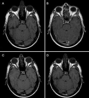 Baseline and follow-up MRI scans (before and after gadolinium administration). The comparison between baseline MR images before (A) and after (B) gadolinium administration reveals slight leptomeningeal enhancement in the superior and vermis folia. Three-month follow-up MR images before (C) and after (D) gadolinium administration evidence resolution of leptomeningeal enhancement.