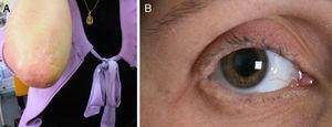(A) Hyperkeratotic plaques on the skin covering the elbows. (B) Moniliform blepharosis.
