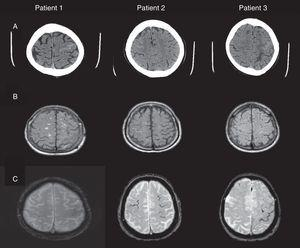 (A) Cranial CT: hyperdense areas in a sulcus of the frontal convexity corresponding to subarachnoid bleeding (left frontal lobe in patients 1 and 3, and right frontal lobe in patient 2). (B) FLAIR MRI: intrasulcal hyperintensity in the area with subarachnoid bleeding as displayed by CT imaging. (C) Gradient-echo MRI revealing microbleeds and superficial haemosiderosis.