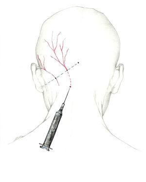 Proximal approach to the greater occipital nerve.