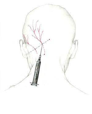 Approach to the greater occipital nerve near the muscle insertion point.