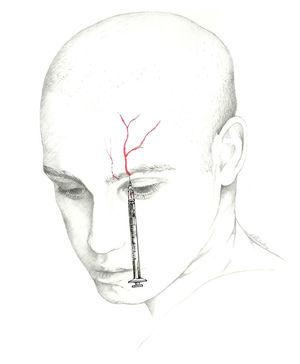 Approach to the supraorbital and supratrochlear nerves.