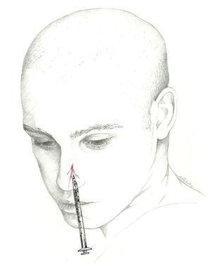 Approach to the external nasal nerve.