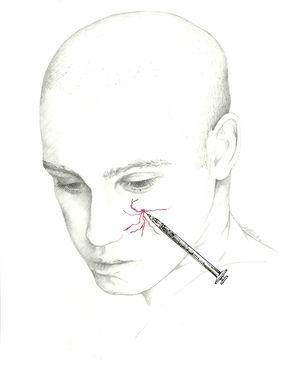 Approach to the infraorbital nerve.