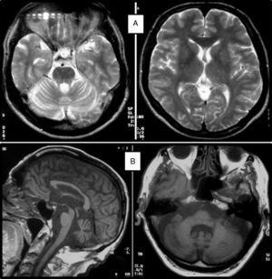 A) T2-weighted MRI scan of a 52-year-old patient with SCA36 showing no white matter lesions or cortical atrophy; diffuse cerebellar atrophy may be seen. B) T1-weighted MRI scan of an 86-year-old patient with SCA36 showing olivopontocerebellar atrophy.