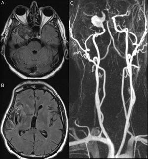 (A) T1-weighted MRI sequence showing an aneurysm in the cavernous segment of the right ICA, which was recanalised, and turbulent blood flow. (B) T1-weighted MRI sequence displaying infarction in the right insular cortex and right temporal operculum. (C) MR-angiography of the supra-aortic trunks revealing a fusiform aneurysm in the right ICA which becomes saccular in the cavernous segment. Artefact caused by a stent between the ACA and the MCA, which makes it difficult to assess the lumen of these arteries.