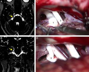 Axial (A) and coronal (B) DRIVE MRI sequences showing a loop in the superior cerebellar artery (SCA), which is in contact with the superomedial aspect of the trigeminal nerve (arrow) near the root entry zone, displacing the nerve. (C) Microsurgical image of the right cerebellopontine angle showing a loop in the SCA which compresses the trigeminal nerve. (D) Decompression of the trigeminal nerve by inserting a piece of Teflon between the offending vessel and the nerve. 1: trigeminal nerve; 2: VII and VIII cranial nerves; 3: SCA; 4: anterior inferior cerebellar artery (AICA); 5: Teflon.