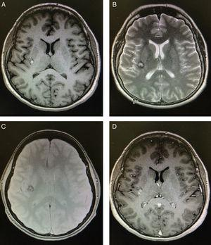 "Brain MRI scan performed 24hours after admission. (A) Non-contrast T1-weighted MRI sequence showing a small, well-defined hyperintense lesion in the right insula. (B) T2-weighted MRI sequence revealing a heterogeneous lesion consisting of a hyperintense area with a hypointense rim; the grey matter is not affected. (C) Gadolinium-enhanced T1-weighted MRI sequence showing homogeneous contrast enhancement. (D) Gradient-echo MRI sequence revealing a lesion in the right insula with a dark rim (haemosiderin), demonstrating a ""popcorn"" appearance."