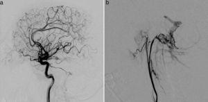Arteriography revealed a DAVF in the posterior fossa, fed by the interior (a) and exterior (b) carotid arteries, with venous drainage through the transverse and sigmoid sinuses and cortical veins (Cognard II a+2).