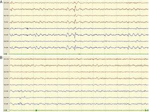 Example of an 8-channel emergency EEG recording showing initial epileptiform anomalies (EA) of generalised expression, predominating in posterior regions (compatible with NCSE), in a patient with episodes of disorientation (A) and the subsequent disappearance of the EAs (B). We observed a posterior alpha background activity and anterior fast rhythms, accompanied by clinical improvement, after the administration of IV diazepam.