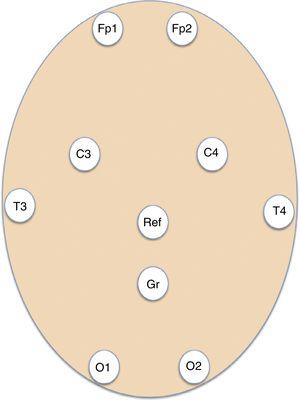 Diagram showing the placement of the self-adhesive electrodes for the basic system of 8 EEG channels used for emergency EEG recordings. C: parietal; Fp: frontopolar; Gnd: ground; O: occipital; Ref: reference; T: temporal.