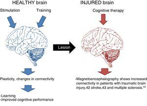 The effects of cognitive stimulation on healthy and injured brains.