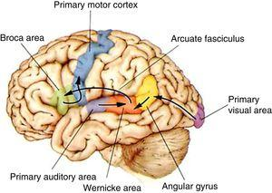 The functional pathways involved in comprehension, repetition, and production of written, gesture, and spoken language, according to the Wernicke-Geschwind model. Within the left hemisphere, language organisation follows certain anatomical pathways for language comprehension, repetition, and production. Sounds are processed by the bilateral auditory cortex, in the superior temporal gyrus (primary auditory area), and decoded in the posterior area of the left temporal cortex (Wernicke area); the latter is connected to other cortical areas or networks which assign meaning to words. During reading, output from the primary visual area (bilaterally) travels to other parieto-occipital association areas for word and phrase recognition (especially the left fusiform gyrus, located in the inferior surface of the temporal lobe, where there is a key word recognition centre) and reaches the angular gyrus, which processes language-related visual and auditory information. In spontaneous language repetition and production, auditory information must travel through the arcuate fasciculus towards the left inferior frontal region (Broca area), which is responsible for language production; this area is also known to be involved in such other functions as action comprehension (mirror neurons). To produce written or spoken language, output from the Wernicke area, the Broca area, and nearby association areas must reach the primary motor cortex.10,11 Adapted with permission from Bear et al.10