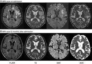 (A) Brain MRI revealing cortical and subcortical hyperintensity in both insular areas, the left temporal lobe, and the parasagittal frontal lobe on T2-weighted and FLAIR sequences. DWI showed cortical signal alterations in all these areas, with no abnormal diffusion restriction in the ADC map. (B) A second MRI scan performed 2 months later revealed that lesions had disappeared.