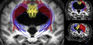 Tractography reconstruction of DTI sequences of the patient shown in the previous figure. The image shows the distortion generated by ventricular dilatation along the pyramidal tract (1) and in the corticostriatal and corticoreticular connections (3). The corticostriatal and corticoreticular tracts are considerably thinner than normal; thinning is also observed in the cingulate fasciculus (2) and, to a lesser extent, in the pyramidal tract (1).