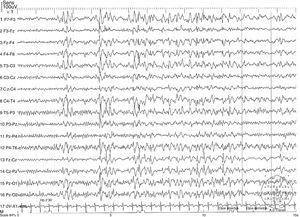 Electroencephalography reading showing a generalised synchronous, symmetrical, 3.5-Hz spike-and-wave discharge.