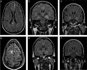 Patients' brain MRI scans. A and B) FLAIR sequence of the first patient, revealing bilateral frontal subcentimeter lesions and a T2-hyperintense lesion in the posterior corpus callosum with no contrast uptake. C and D) Diagnostic and follow-up FLAIR sequences of the second patient, showing enlargement and increased signal in the amygdala and left hippocampal head, and a subsequent decrease in size and signal. E and F) Diagnostic FLAIR sequence of the third patient, showing increased signal in both hippocampi.