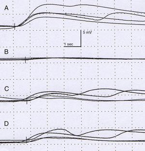 Neurophysiological study. Amplitude (mV) and latency (s). Sympathetic response of the skin after stimulating the right median nerve is normal in the right hand (A), with the left hand showing a delayed, low-amplitude response in comparison to the contralateral side. The response on the right (C) and left (D) leg shows no alterations.