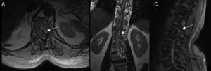 Spinal cord MRI of patient 7, showing multiple irregular artefacts in the thecal sac. (A, B) Pseudonodular hyperintensities on T2-weighted sequences. (C) Hypointensities on T2-weighted gradient-echo sequences, extending from T9 to the thecal sac; diffuse hyperintensity of CSF on T1-weighted sequences (clots distort the image of the exit of cauda equina nerve roots); and conus medullaris hyperintensity. These findings are compatible with lumbar subarachnoid haemorrhage.