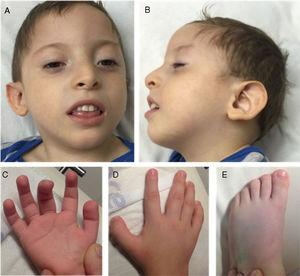 Clinical phenotype: (A and B) Wide forehead, prominent metopic ridge, permanently open mouth, and low-set ears with posterior rotation. (C) Fingertip pads. (D and E) Broad fingers and toes, especially the thumb and toe.