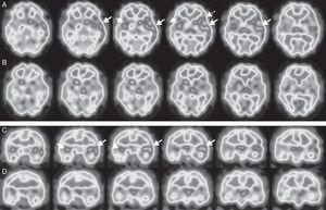 Brain perfusion SPECT scan with 99mTc-HMPAO, performed at diagnosis. Axial (A) and coronal (C) sequences showing hyperperfusion in the left temporal cortex (long arrows), predominantly in the superior lateral area and the insula, and extending to the adjacent frontotemporal area (Broca area) (dotted arrow). Hyperperfusion was less marked and less extensive in the right temporal cortex (short arrows). A follow-up study conducted after 5 months (B and D) revealed nearly complete resolution of abnormal brain perfusion.