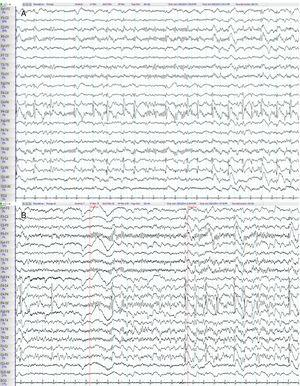 Baseline electroencephalography. (A) Frequent epileptiform discharges consisting of 1-Hz spike-and-wave complexes are observed on the right parietal region and midline (C4-P4, P4-O2, Fz-Cz, Cz-Pz), occasionally radiating to the adjacent areas. (B) A parieto-occipital alpha rhythm is recorded in the posterior regions (P3-O1, T5-O1, P4-O2, T6-O2); this rhythm was reactive to the closing of the eyes and attenuated when eyes opened.