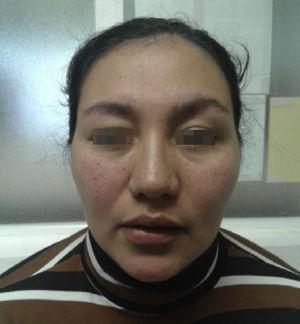 Right hemifacial spasm, with tonic contraction of the orbicularis oculi and lower facial muscles (reproduced with the patient's written permission).