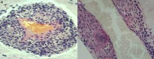Axial (a) and sagittal planes (b) showing small meningeal and brain arteries with inflammatory infiltration into the walls: lymphocytes, histiocytes, and multinucleated giant cells (H&E×400).