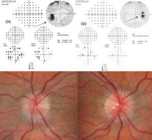 Fundus photograph and 30-2 Humphrey visual field test at 2 weeks of follow-up. The patient displays bilateral papilloedema, stage 3 in the OS and stage 2 in the OD. The visual field test reveals an enlarged blind spot in both eyes, especially the left.